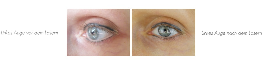 Permanent Makeup, Permanent Make up, Permanent Make up wo machen lassen, Permanent Make up Lidstrich oben, Permanent Make up Lidstrich oben Schmerzen, Permanent Makeup Lidstrich oben und unten, Permanent Makeup Lidstrich, Permanent Makeup Lidstrich Schmerzen, Permanent Makeup Lidstrich Vorher Nachher, Permanent Make up Vorher Nachher, Permanent Make up Vorher Nachher Bilder, Permanent Makeup Lidstrich Haltbarkeit, wie lange hält ein Permanent Make up Lidstrich, Permanent Make up verblasst, Permanent Make up verpfuscht, verpfuschtes Permanent Make up Lidstrich, verpfuschtes Permanent Make up Bilder, Permanent Make up retuschieren, Permanent Make up weglasern, Permanent Make up Lasern Erfahrungen, Permanent Make up Lasern, Permanent Makeup lasern lassen, Permanent Make up Lidstrich entfernen, verzeichnetes Permanent Make up, Beauty Blog, Super Twins Annalena und Magdalena