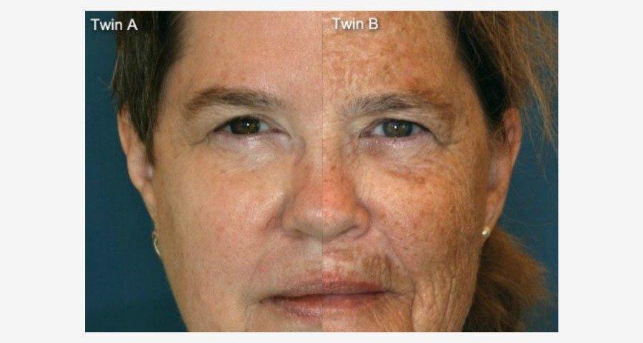 Anzeichen vorzeitiger Hautalterung, vorzeitige Hautalterung durch Sonne, Anti Aging vorher nacher